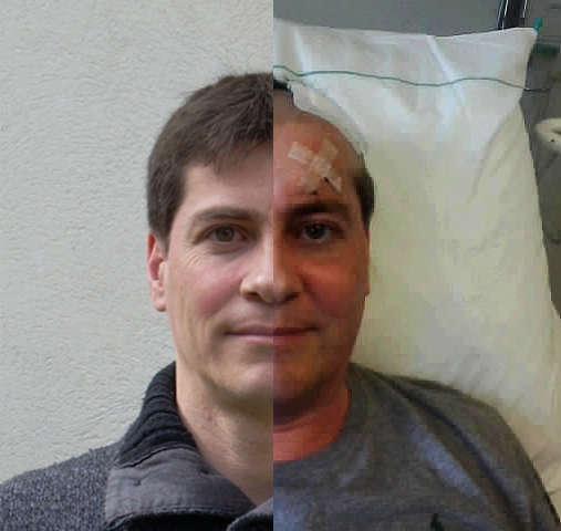 Jörg, vorher und nachher mein Leben