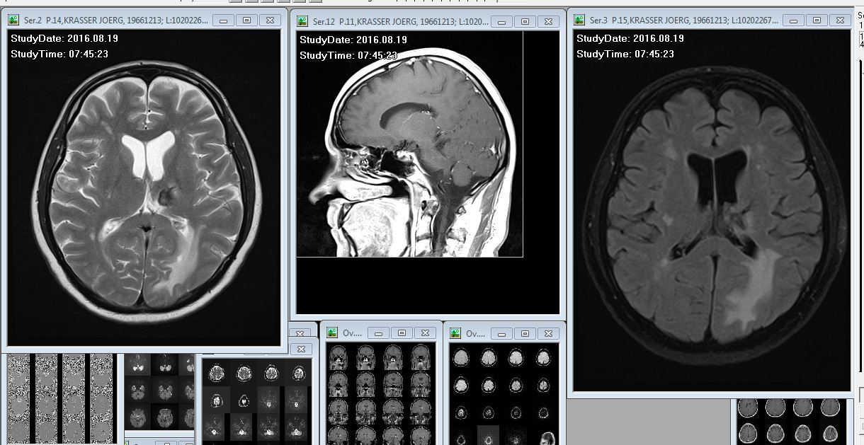 Mein Gehirn im MRT